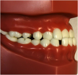 Underbite (reverse overbite in the front teeth)